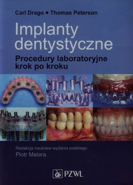 Implanty dentystyczne - Carl Drago, Thomas Peterson
